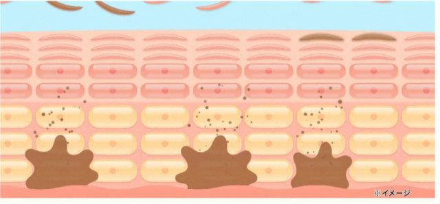 ホワイピュアでシミを排出するイメージ